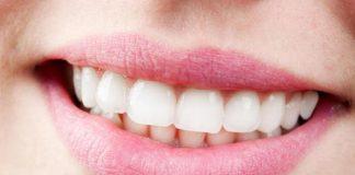 cara merapikan gigi secara alami