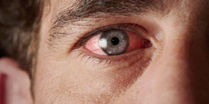 manfaat akupuntur untuk mengatasi mata kering