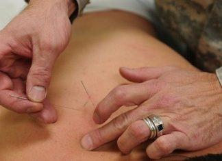 Akupuntur Untuk Meredakan Nyeri Kronis