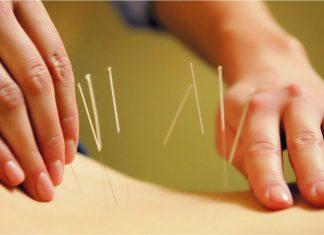 Atasi stres dengan titik akupuntur