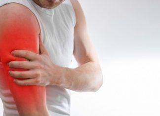 terapi akupuntur untuk nyeri otot