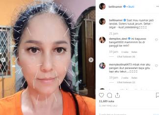 4 Artis Indonesia pernah terapi akupuntur