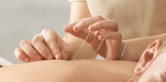 Manfaat akupuntur selama perawatan