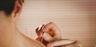 akupuntur medis