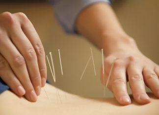 4 mitos akupuntur