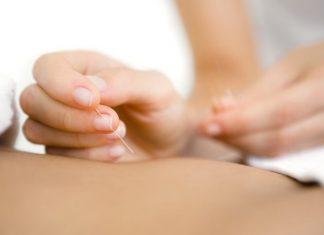 manfaat akupuntur selain menambah stamina