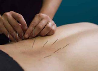 bagaimana akupuntur mengatasi rasa