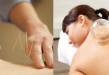 Perbedaan bekam dan akupuntur
