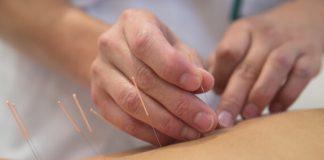 Hal yang tidak diketahui pasien akupuntur