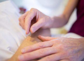 akupuntur dapat membantu mengatasi hipertensi