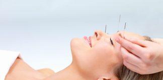 akupuntur kosmetik aman