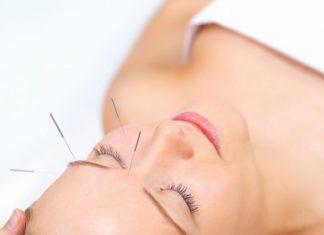 fakta tentang akupuntur kosmetik