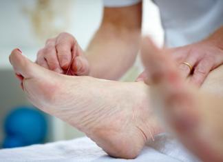 manfaat akupuntur untuk kaki sakit