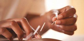 manfaat yang bisa didapatkan dari akupuntur