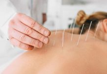akupuntur dapat atasi banyak masalah kesehatan