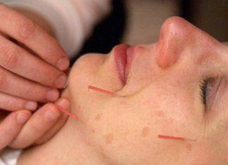 ternyata banyak orang amerika menggunakan akupuntur
