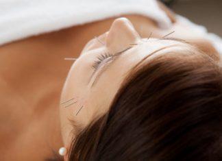 atasi masalah kesehatan mata dengan akupuntur