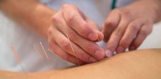bisakah akupuntur diberikan untuk anak
