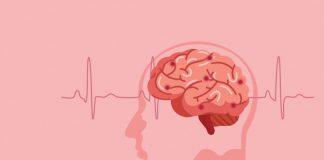 mengobati serangan stroke