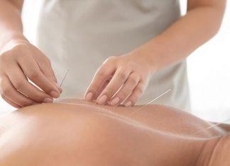 Manfaat Utama Akupuntur
