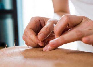 akupuntur jadi alternatif untuk alergi dan asma