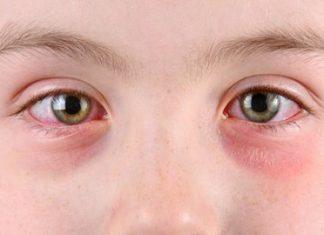 terapi akupresur untuk mata