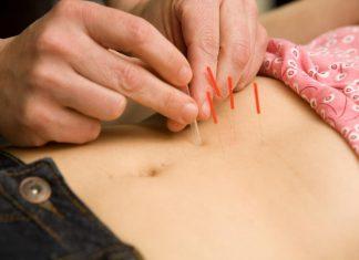 Bisakah Akupuntur Membantu Kesuburan Wanita