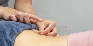 Ini cara akupuntur