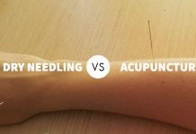 apakah dry needling sama dengan akupuntur