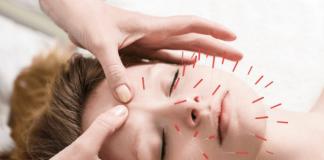cara kerja akupuntur dan kenapa baik untuk kesehatan