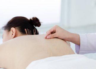 mengenal manfaat akupuntur