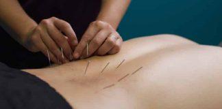 mitos umum tentang akupuntur